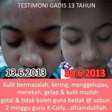 testimoni7